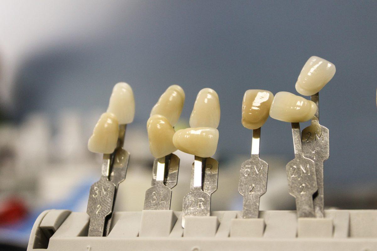 Śliczne zdrowe zęby dodatkowo powalający przepiękny uśmieszek to powód do dumy.